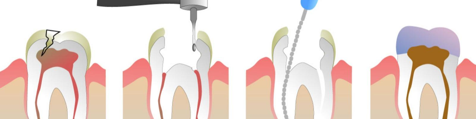Root Canals Cover